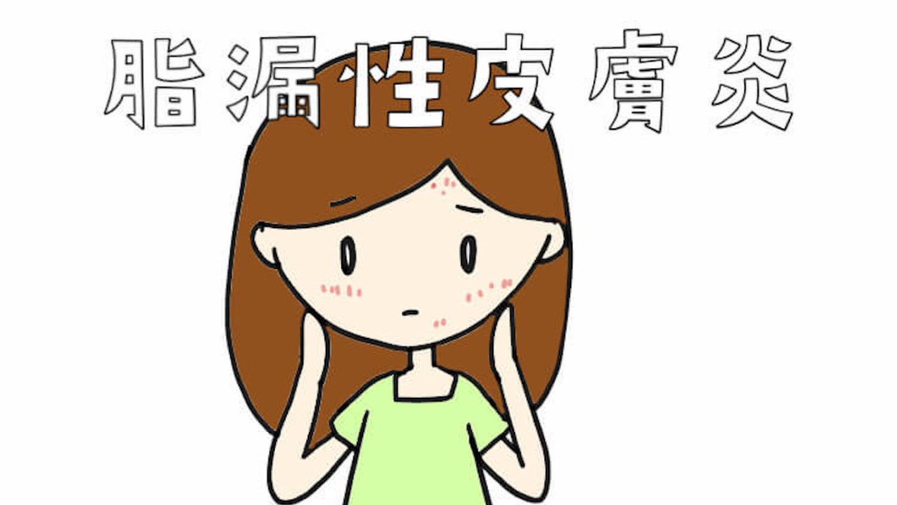 漏 皮膚 脂 顔 性 炎