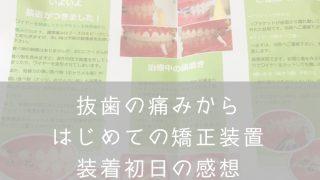 歯列矯正ワイヤー初日・ナナメドリ