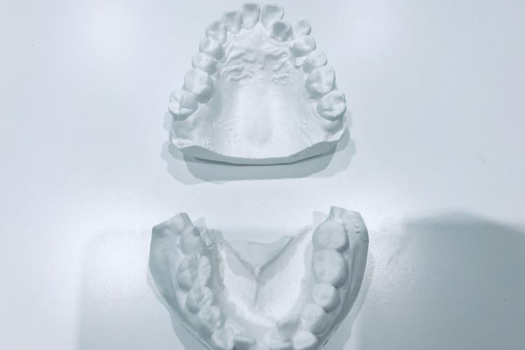 35歳の歯列矯正・ナナメドリ