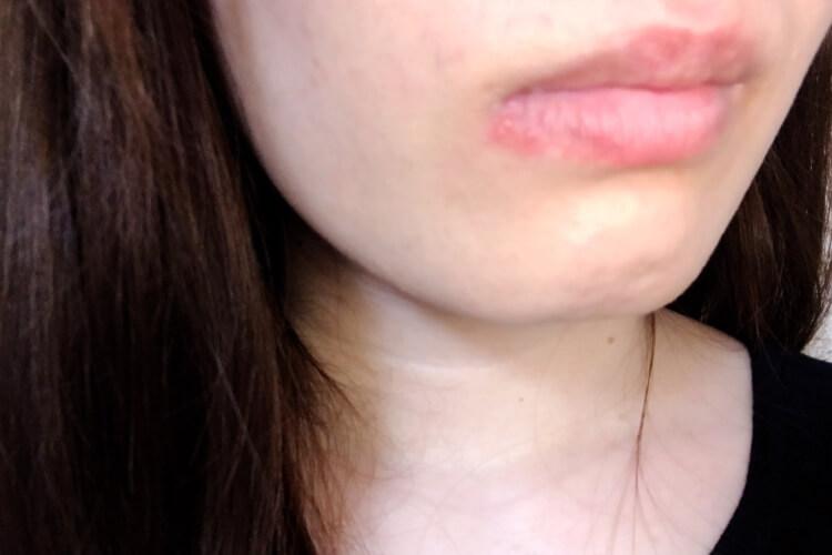 口唇ヘルペス症状・ナナメドリ